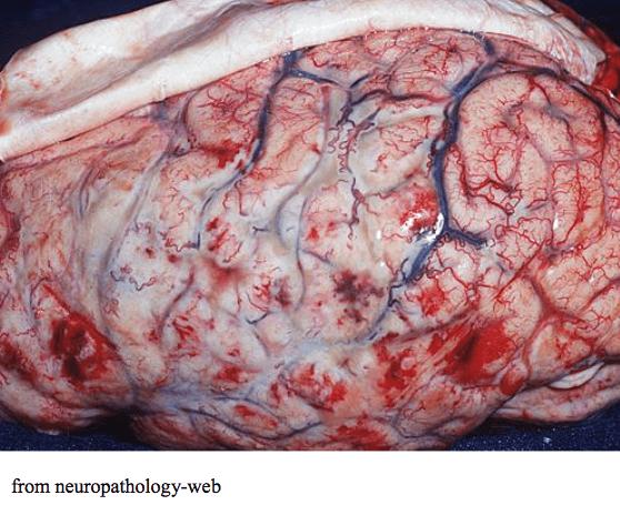 Lyme disease in horses - brain with menengitis